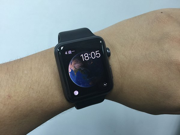 apple-watch-causes-skin-rashes-for-some-users_00