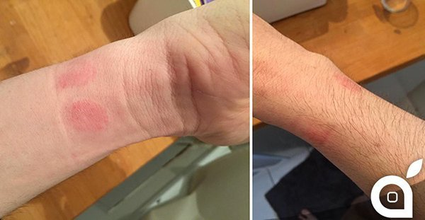 apple-watch-causes-skin-rashes-for-some-users_01