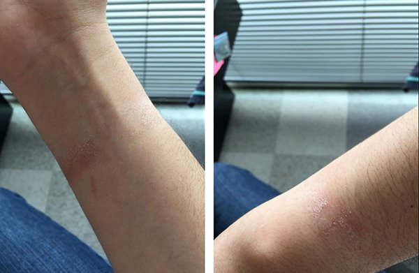 apple-watch-causes-skin-rashes-for-some-users_02